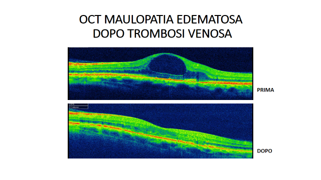 OCT ed edema maculare in retinopatia diabetica pre e post..