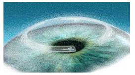 anelli corneale intrastromali (intacs)